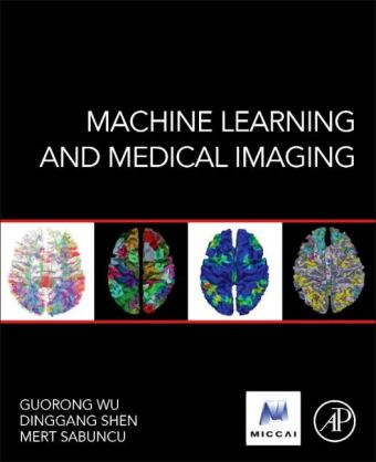 Machine Learning and Medical Imaging | Dodax.pl