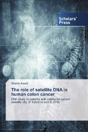 The role of satellite DNA in human colon cancer | Dodax.pl