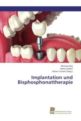Implantation und Bisphosphonattherapie | Dodax.de