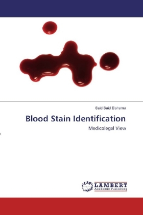 Blood Stain Identification | Dodax.de