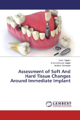 Assessment of Soft And Hard Tissue Changes Around Immediate Implant | Dodax.pl
