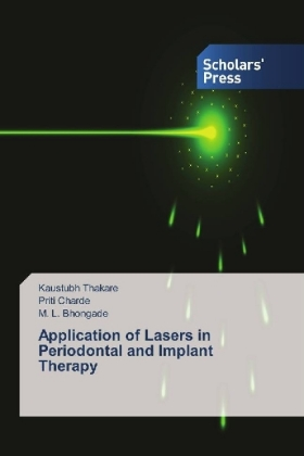 Application of Lasers in Periodontal and Implant Therapy | Dodax.ch