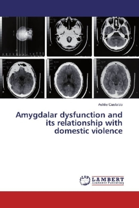 Amygdalar dysfunction and its relationship with domestic violence | Dodax.pl