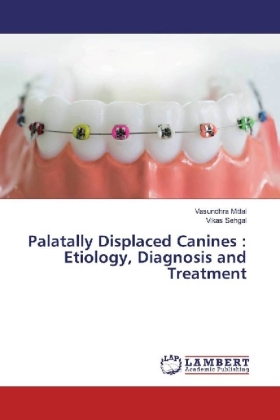 Palatally Displaced Canines : Etiology, Diagnosis and Treatment | Dodax.at