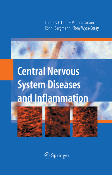 Central Nervous System Diseases and Inflammation | Dodax.ch