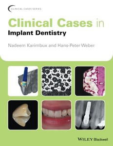 Clinical Cases in Implant Dentistry | Dodax.pl
