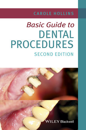 Basic Guide to Dental Procedures | Dodax.ch