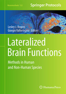 Lateralized Brain Functions | Dodax.ch