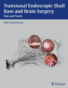 Transnasal Endoscopic Skull Base and Brain Surgery | Dodax.at