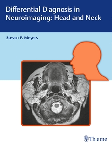 Differential Diagnosis in Neuroimaging - Head and Neck | Dodax.at