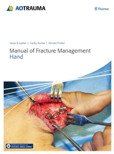 Manual of Fracture Management - Hand | Dodax.ch