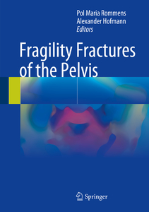 Fragility Fractures of the Pelvis | Dodax.nl