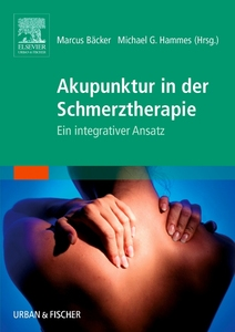 Akupunktur in der Schmerztherapie | Dodax.at