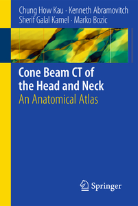 Cone Beam CT of the Head and Neck | Dodax.ch